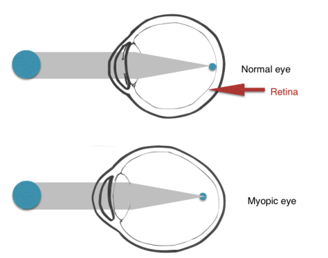 myopic-eye-diagram